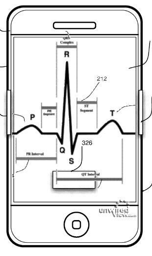 iPhone-EKG1