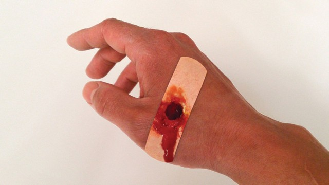 """A small cut becomes a small-caliber bullet wound with """"Boo-Boos Bandages."""" Photo: Sherwood Forlee"""