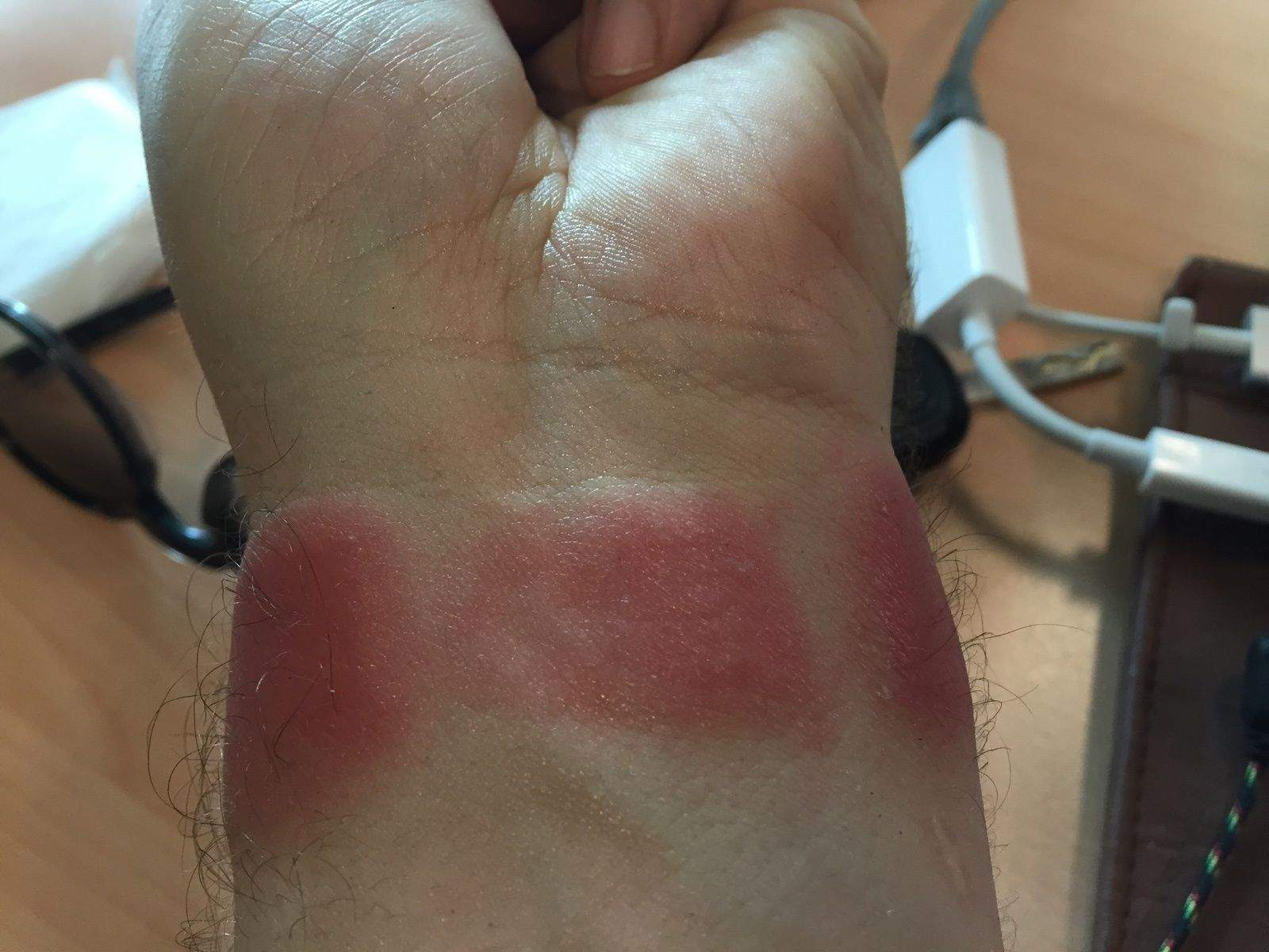 Apple Watch And Fitbit Rashes Are Real And Gross Cult