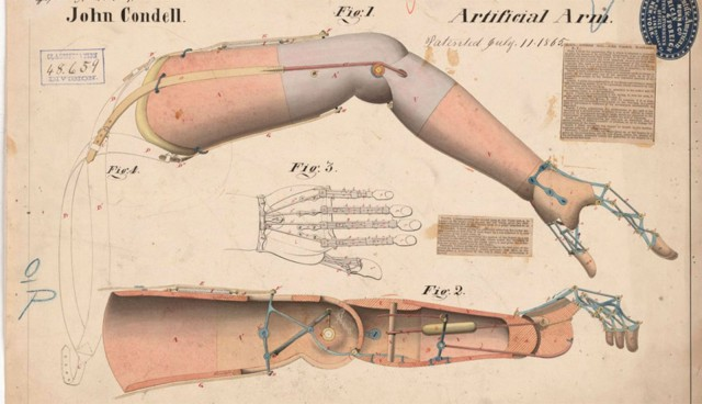 Prosthetic arm.