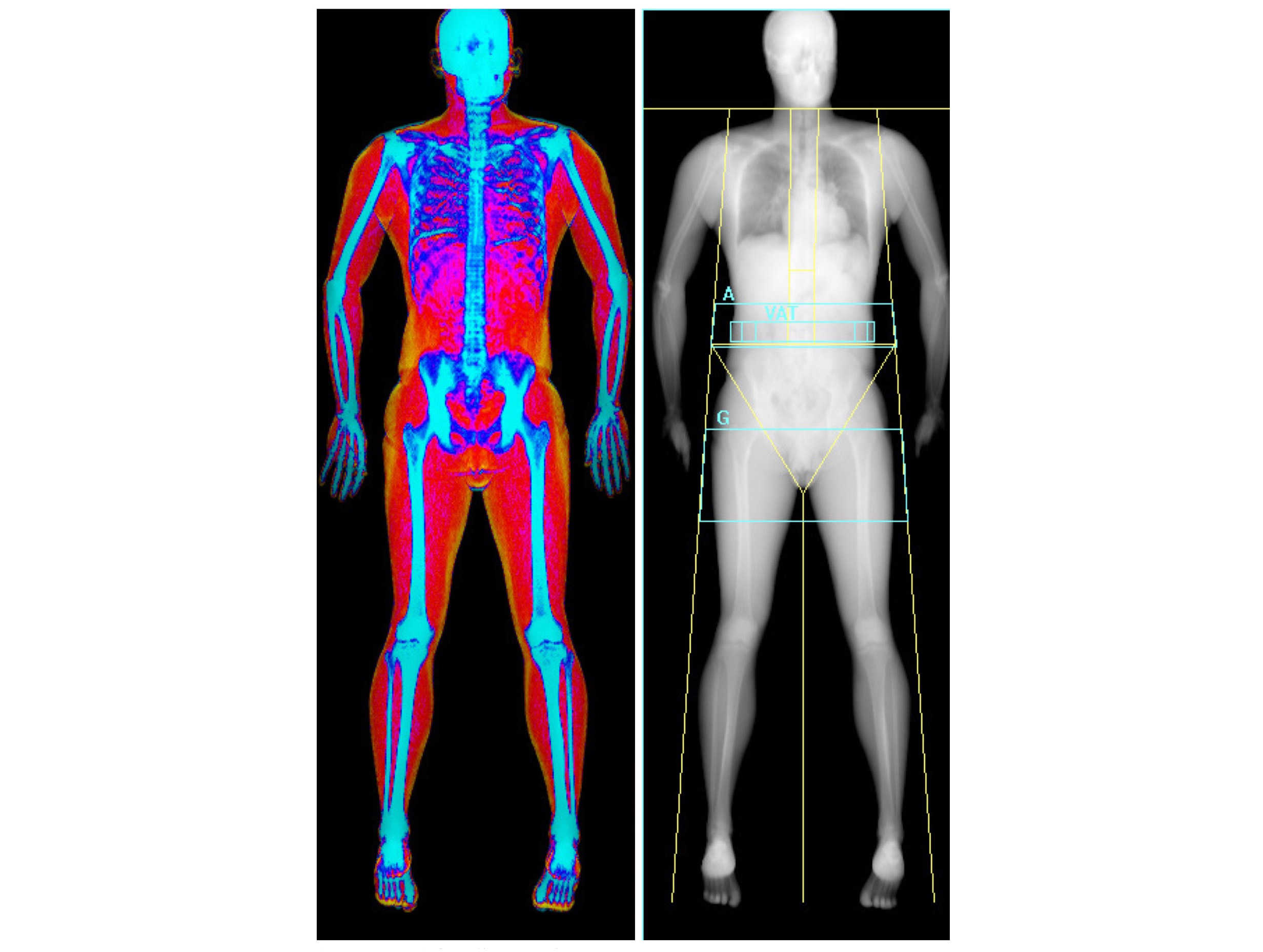 A DEXA scan makes your love handles light up in bright orange
