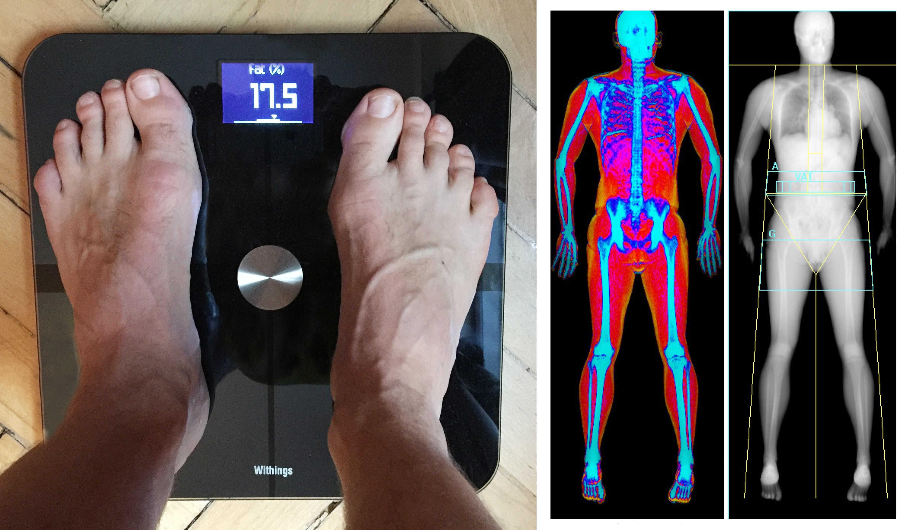 Withings Smart Body Analyzer (left) vs. DEXA, the