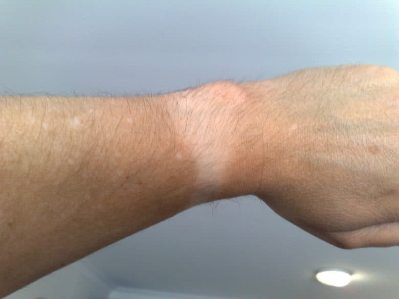 Apple Watch tan line