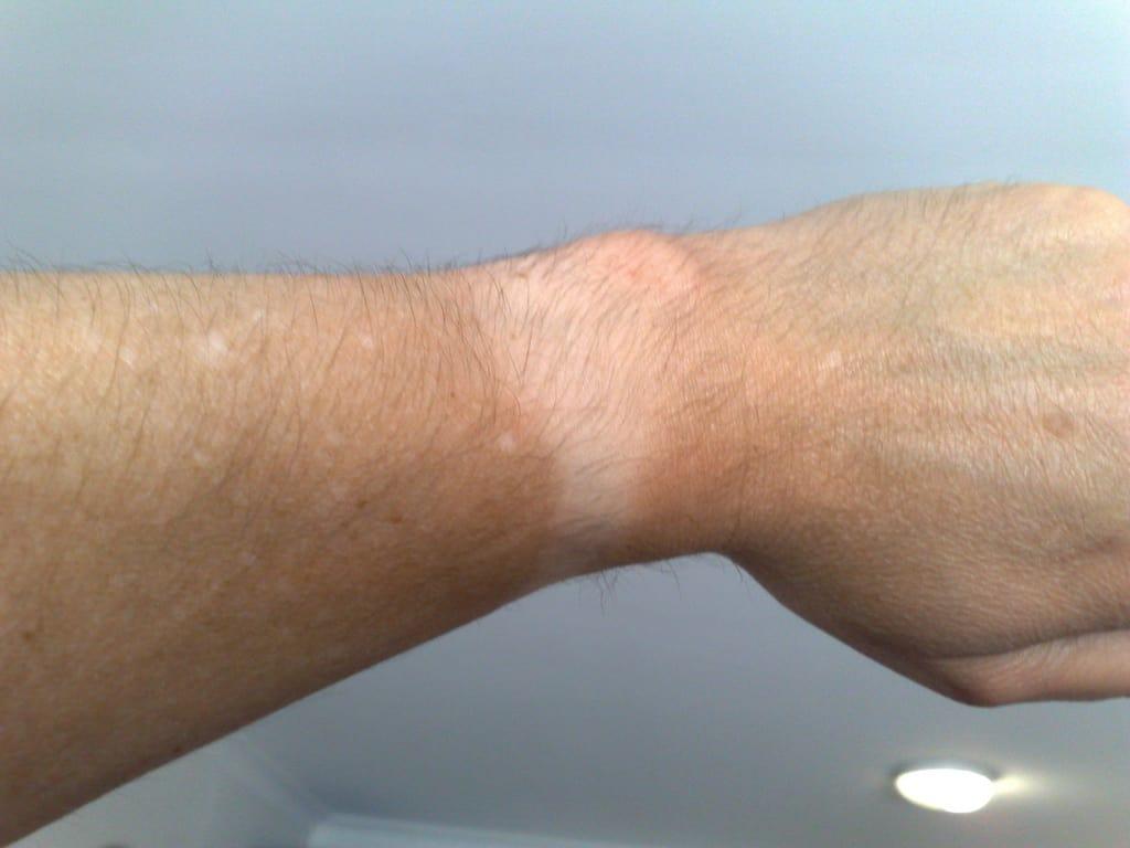 Apple Watch tan line