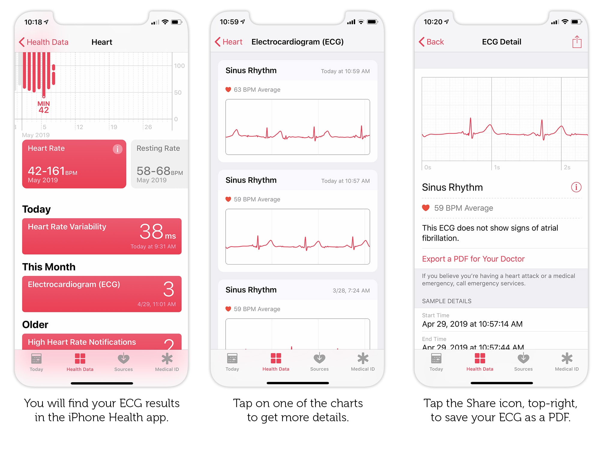 How to export your Apple Watch ECG result as a PDF to show your doctor