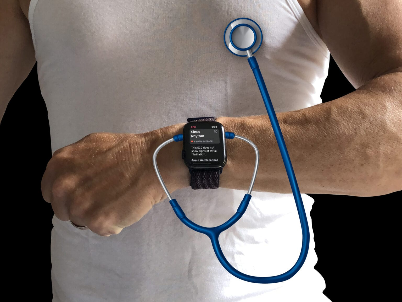 Does Apple Watch need more health sensors?