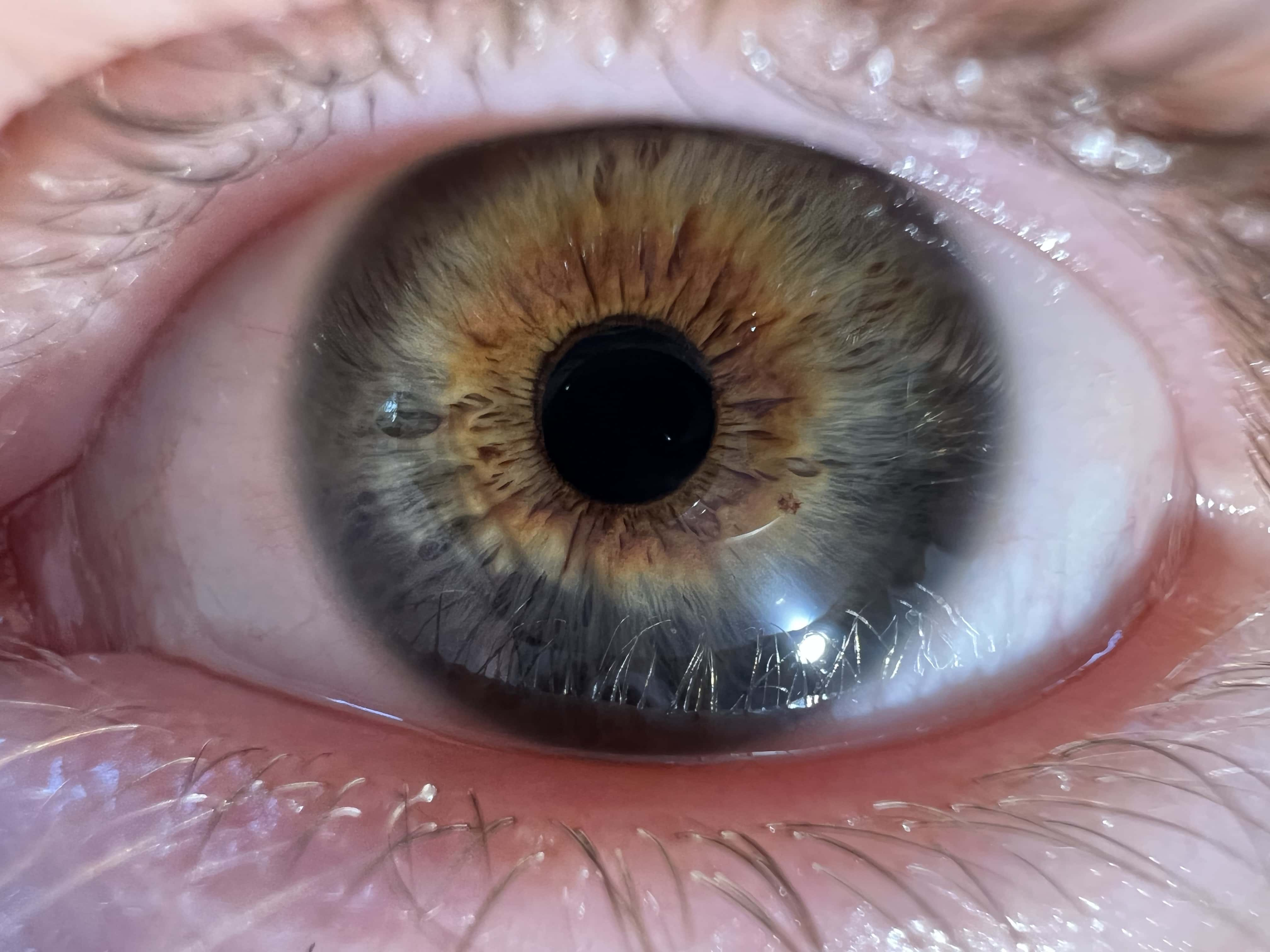 Macro test shot of eyeball from iPhone 13 Pro. Look at that detail in the iris!